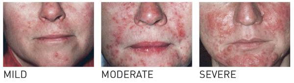 prednisone for allergic asthma
